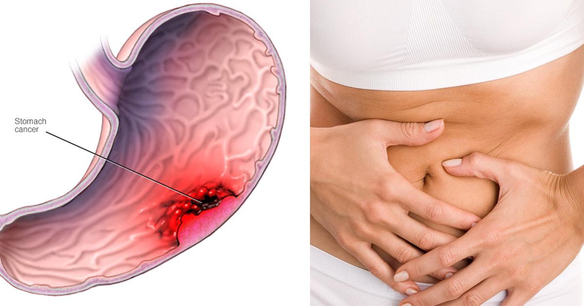 cancer abdominal simptome