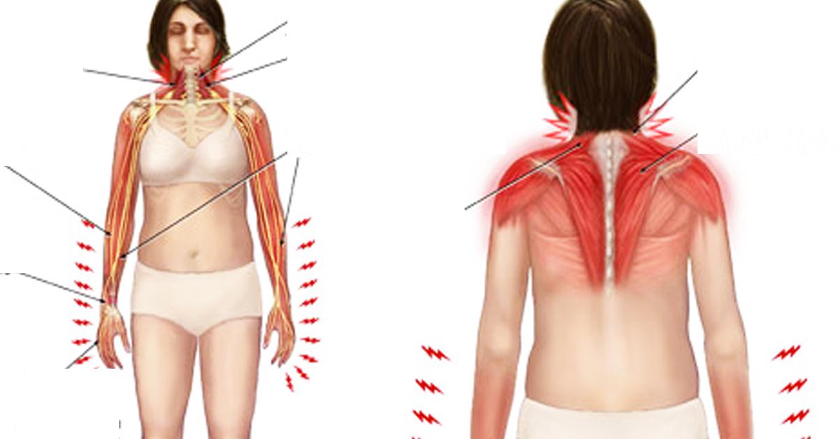 remedii pentru durerea de spate artroza articulațiilor picioarelor și brațelor