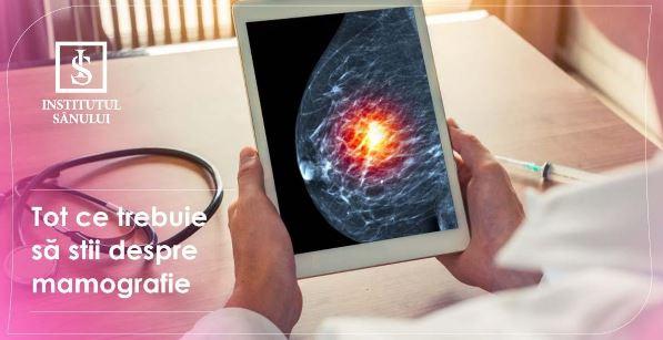 Tot ce trebuie să știi despre mamografie